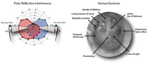 Human Eardrum