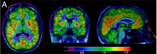 Resonance of the Brain